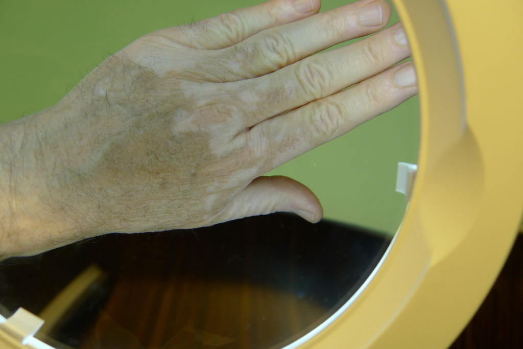 tratamiento vitiligos granada - dermatologia vitiligos granada