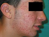 tratamiento acne - tratamiento medico acne granada