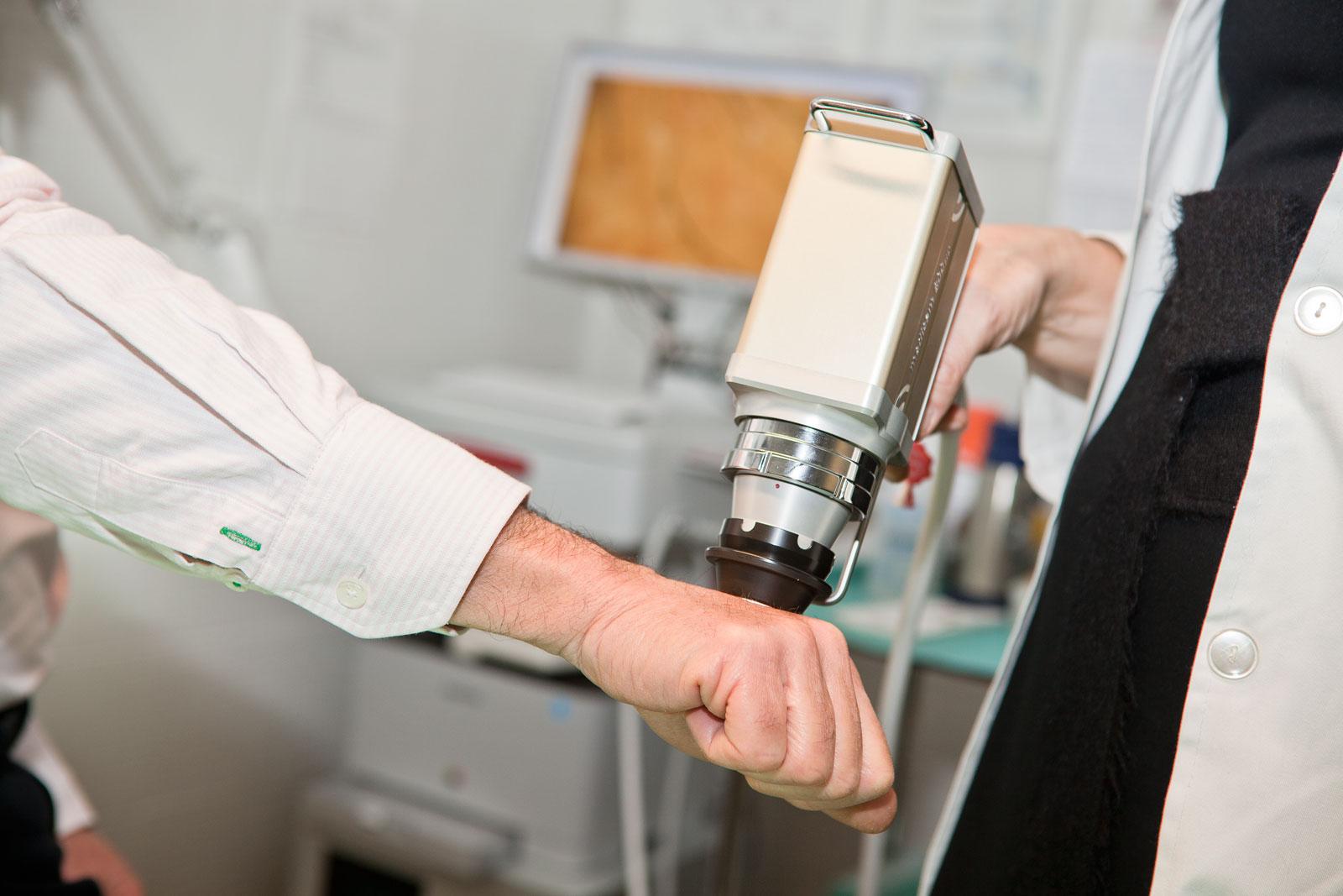 deteccion precoz cancer de piel - deteccion cancer piel granada