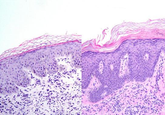 Encontradas-dos-nuevas-estrategias-para-curar-la-psoriasis_image_380 -